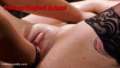 Fisting: Vaginal & Anal